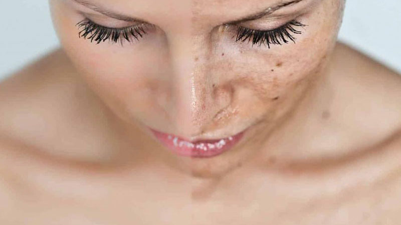 Домашние средства от шрамов и обесцвечивания кожи